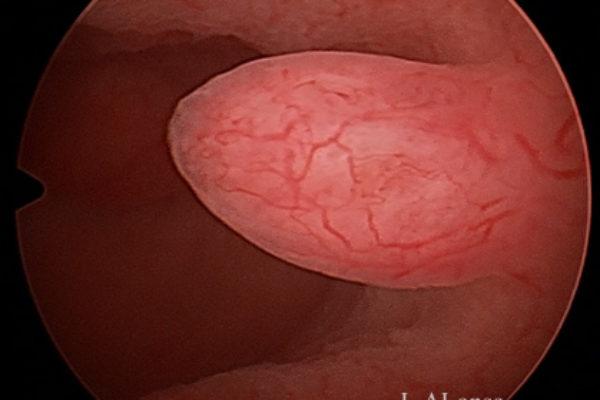 Полип эндометрия.