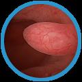 Гистероскопия. Удаление полипов полости матки и цервикального канала